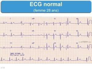 ECG d'une personne normal sans fibrillation