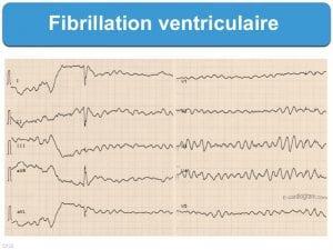 ECG d'une personne atteinte de fibrillation ventriculaire