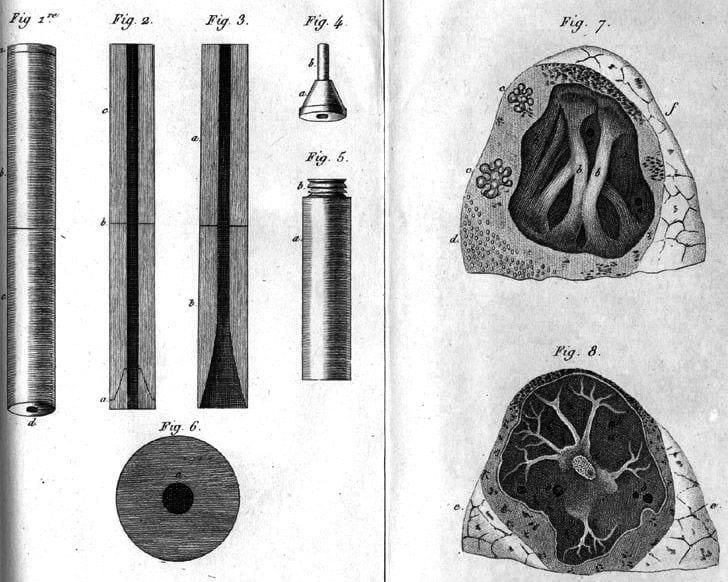 Coupe d'un stethoscope de Laennec