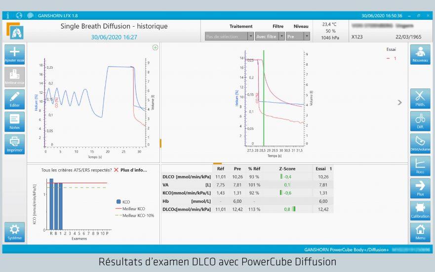 Résultats d'examen DLCO avec PowerCube Diffusion